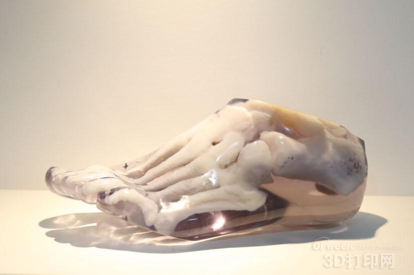 分析3D打印技术在足踝外科中的应用价值