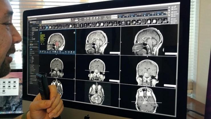 IBM发布首个认知影像产品 预警医生看不到的险情