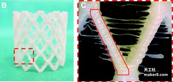 科学家展示可生物降解的自扩展3D打印支架,用于小儿心脏手术