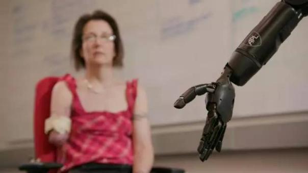 医疗技术公司Steeper为仿生假肢增加感知能力
