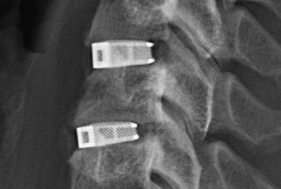 EIT的3D打印CellularTitanium椎间融合器获FDA批准