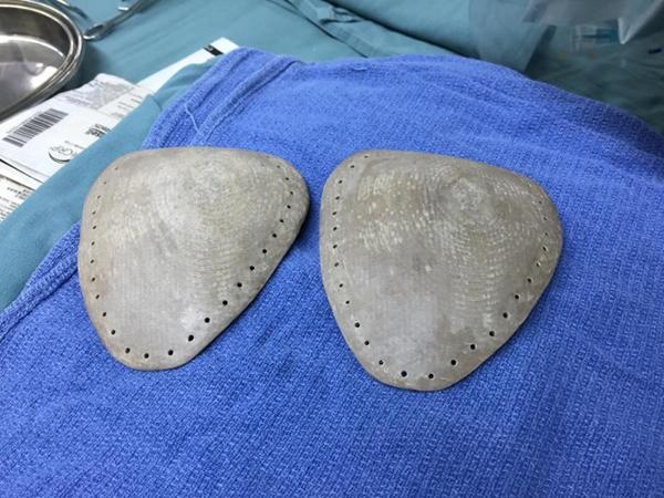 """六龄童心脏""""吊""""胸前像挂饰,上海医生用3D打印修复其胸骨"""
