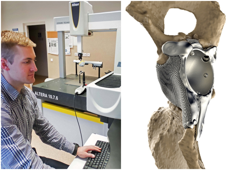 相机巨头尼康获得波罗的海3D打印髋关节植入物扫描认证资格