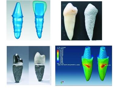 新一代3D打印牙齿要来了 年内启动临床试验