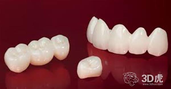 Porimy推出新的3D陶瓷打印机和首个3D打印陶瓷义齿