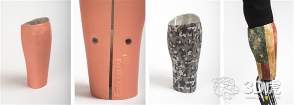 Extremiti3D获得20万美元投资 用于开发3D打印假肢插座