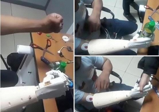吉尔吉斯斯坦国立医院首次研发仿生义肢,可由大脑意念操控